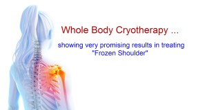 Cryotherapy gets results for Frozen Shoulder